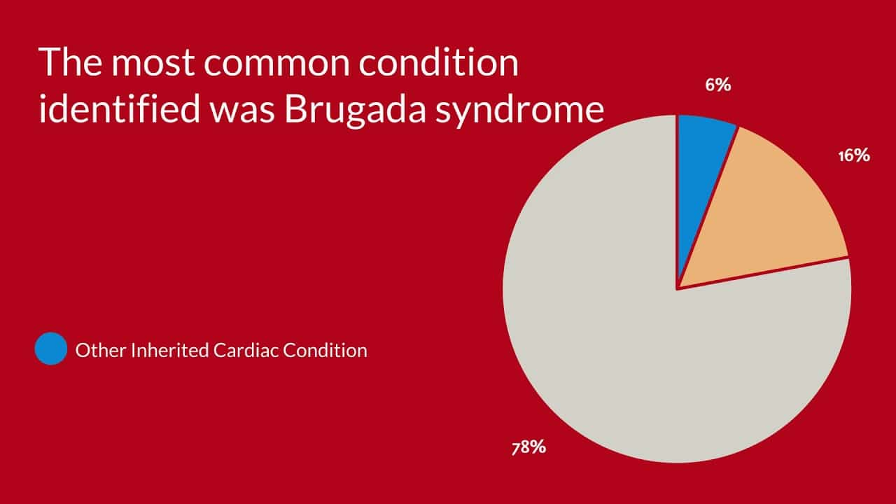 The Diagnostic Yield of Brugada Syndrome After Sudden Death With Normal Autopsy